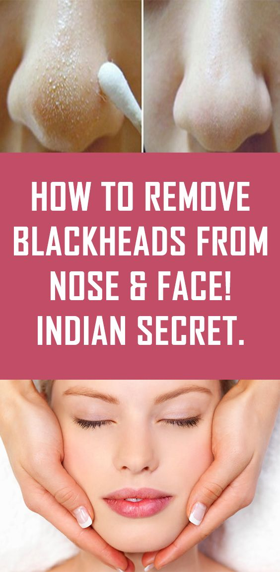 How to Remove Blackheads From Nose & Face! Indian Secret