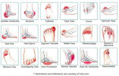 Foot Pain Chart: common ailments and causes.