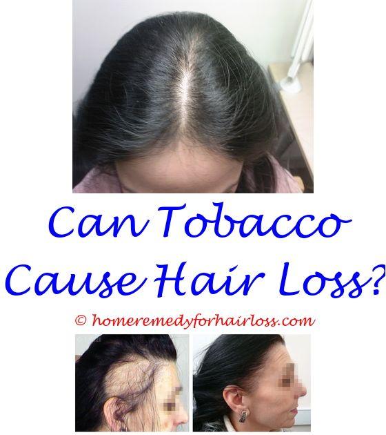 Mejores 14 imágenes de Propecia Hair Loss en Pinterest ...