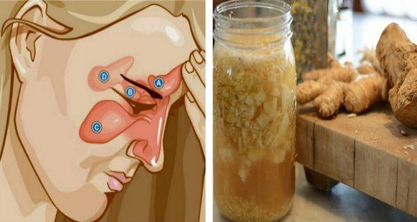 Aquí nosotros te vamos a recomendar los mejores remedios y formas de combatir algo tan desagradable como la sinusitis