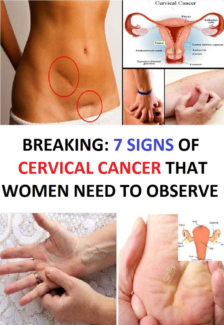 BREAKING: 7 SIGNS OF CERVICAL CANCER THAT WOMEN NEED TO OBSERVE