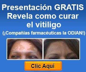 Non Fiction Digital Reading Blog: Cómo curar Vitiligo por Michael Dawson