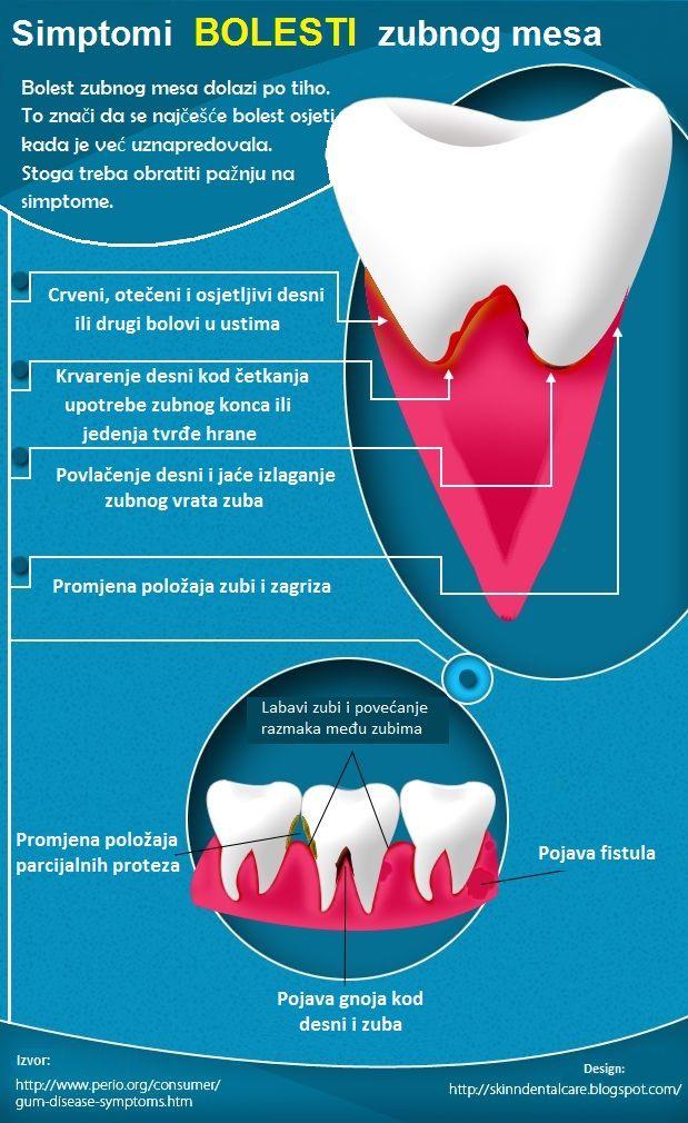 Bolesti zubnog mesa i njihovi simptomi