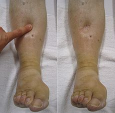 """Edema-- also Oedema, Dropsy, & Hydropsy, (Greek oídēma, """"swelling"""") is an abnormal accumulation of fluid in the interstitium, located beneath the skin and in the cavities of the body which can cause severe pain. Clinically, edema manifests as swelling; the amount of interstitial fluid is determined by the balance of fluid homeostasis, and the increased secretion of fluid into the interstitium, or the impaired removal of the fluid can cause edema."""