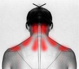 How To Treat And Cure Stiff Neck Or Shoulder To Ease The Pain » The Homestead Survival
