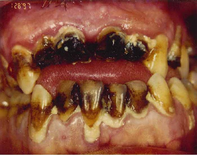 how to fix meth mouth