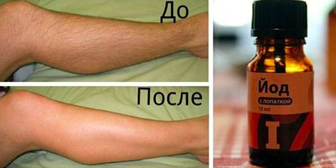 Как с помощью йода избавиться от нежелательных волос на теле: 2 рецепта
