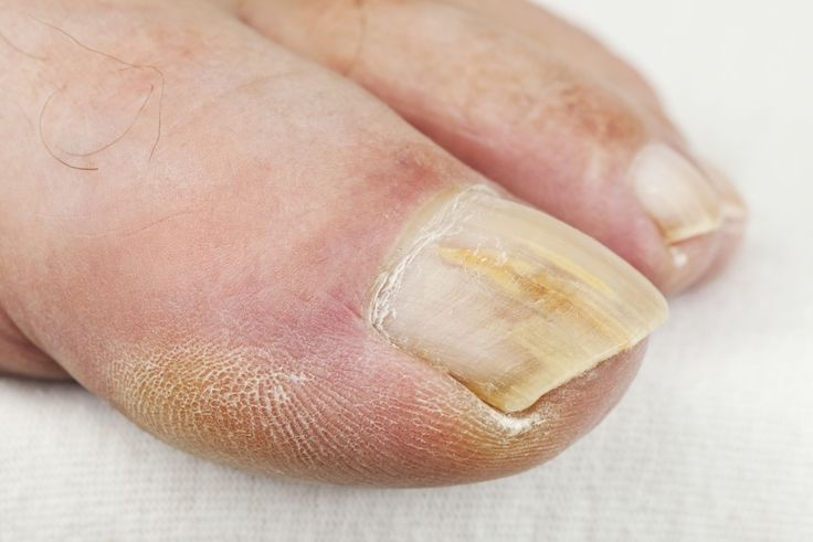 It's not just your skin that may end up with a fungal infection, but your nails too. Between your fingernails and toenails, the latter are the ones that are highly susceptible to the problem. That's because they provide the dark, warm and moist environment fungi really love. If you have athlete's foot — an itchy …