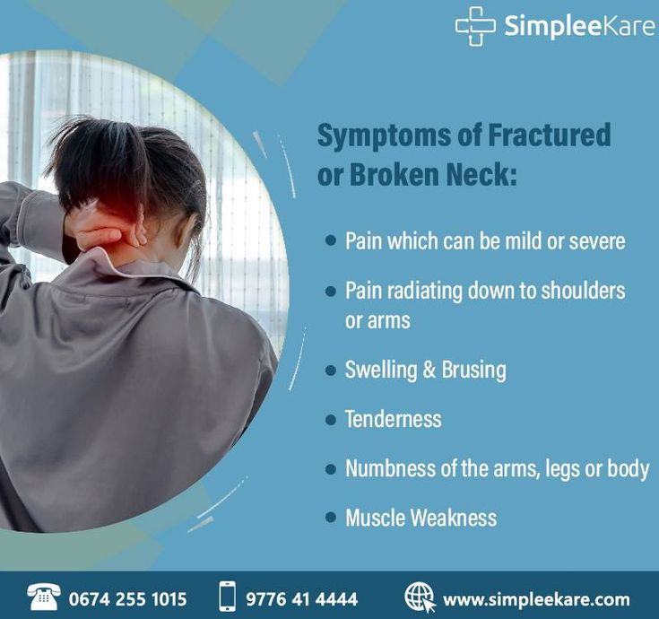 A broken neck can be a simple break like any other bone in ...