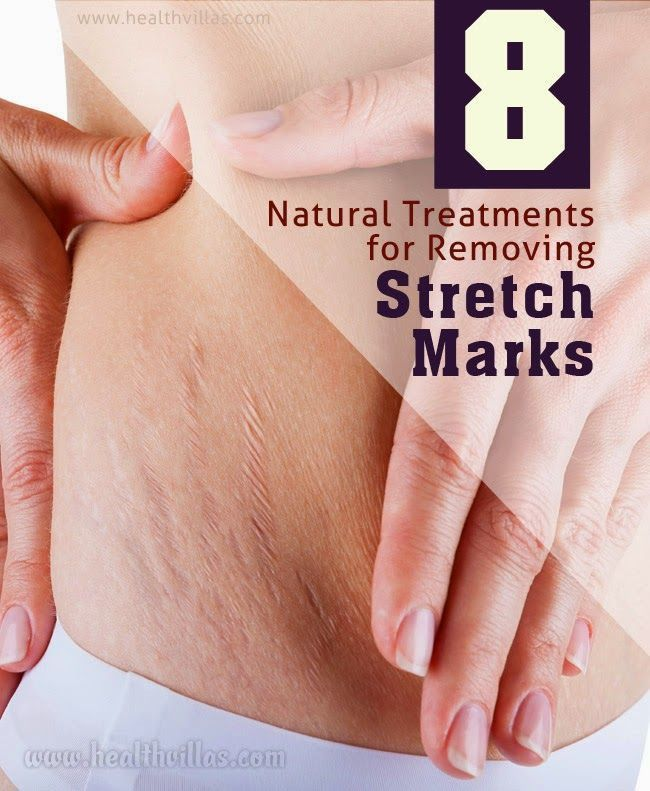 Natural Remedies For Stretch Marks Removal | Health Villas