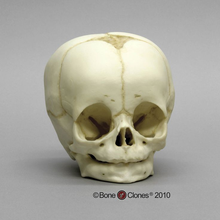 4-month-old Human Child Skull