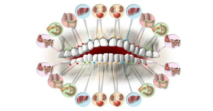 Even a small tooth problem can alarm some internal health issue. It sounds strange but there is a link between the state of teeth and organs inside. Read more below. For example, the lower and upper incisors are linked to the kidneys, bladder and ears. The canine teeth link to the liver and gallbladder. Experts say that premolars link to the lungs and the wisdom teeth to the heart and small intestines. But, this doesn't mean that internal damages have to be linked to the teeth damage…