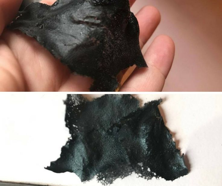 This is an easy DIY Blackhead Peel Off Mask. Great for cleansing pores and removing stubborn blackheads. Made with just 3 ingredients!