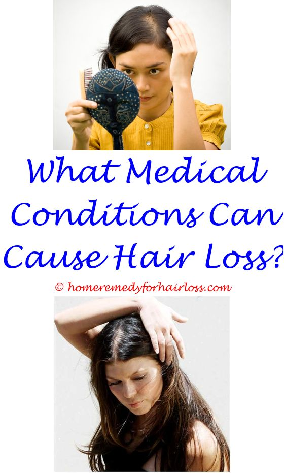 does remeron cause hair loss - doris day md hair loss.can hair loss from tension be reversed castor oil hair loss reddit ways to treat hair loss 3069972012