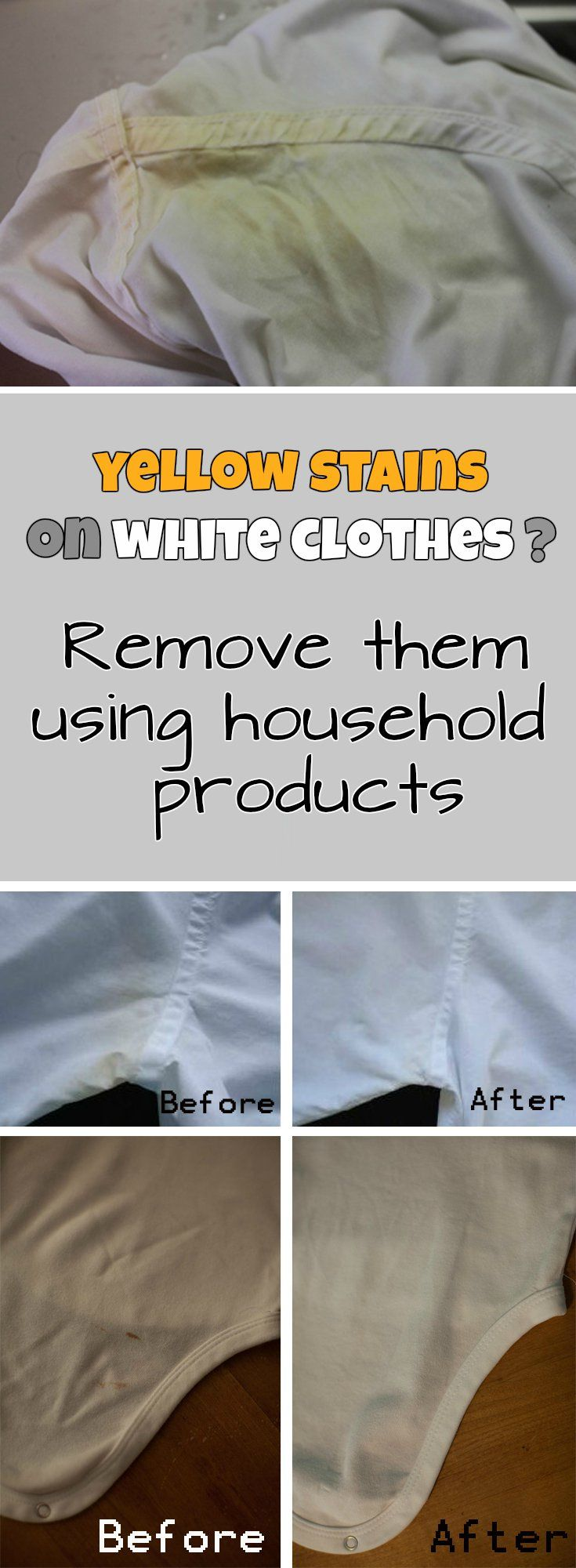 Yellow stains white dress shirt