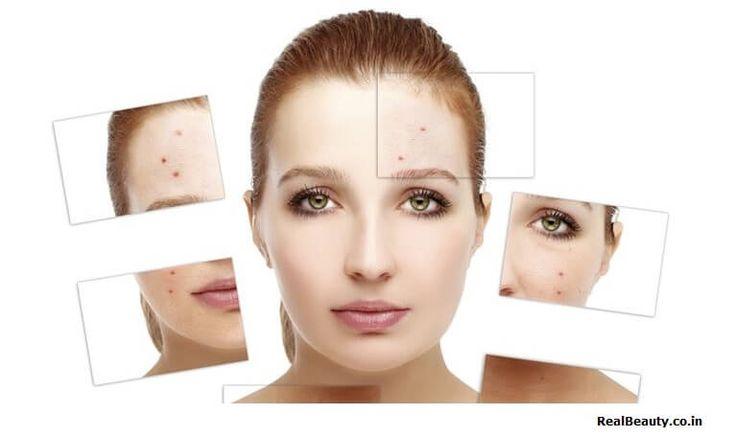 Homemade Acne Treatment