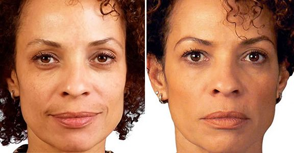 This patient has had face filler injections, which have improved her overall face.  She looks less tired, fresher, and has a younger looking overall appearance.