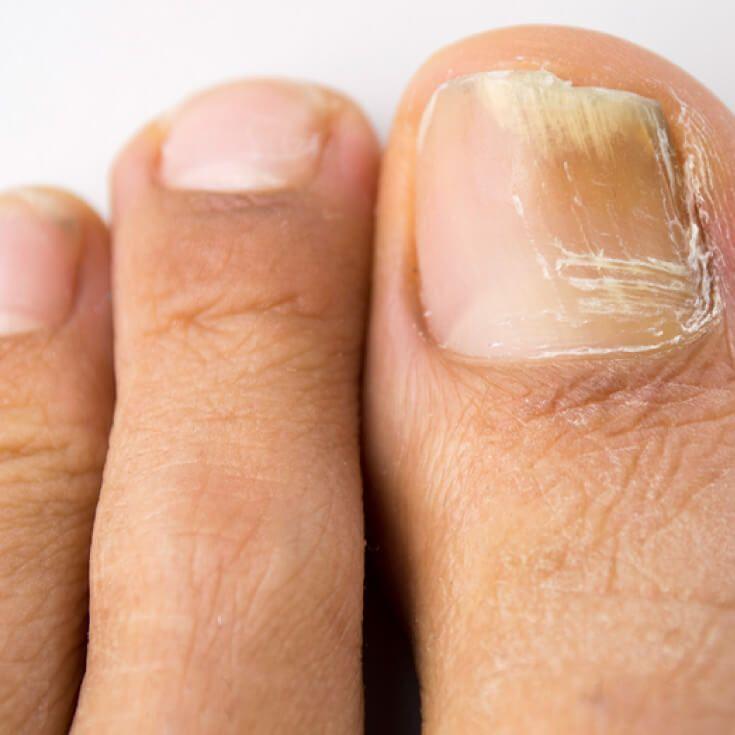 Toenail Fungus Treatment: 3 Steps to Get Rid of It Fast!