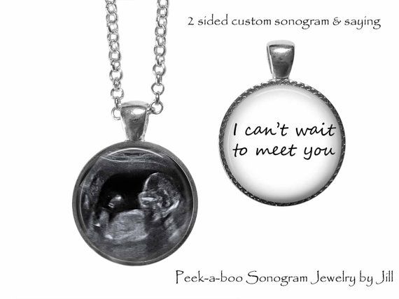 ♥ Mom to be sonogram necklace - Custom Sonogram necklace - Your sonogram photo on front - I cant wait to meet you on back - baby ♥ This double