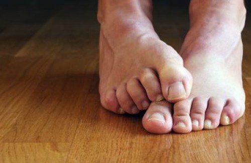 La micosi colpisce soprattutto le dita dei piedi, ma può anche comparire sulle…