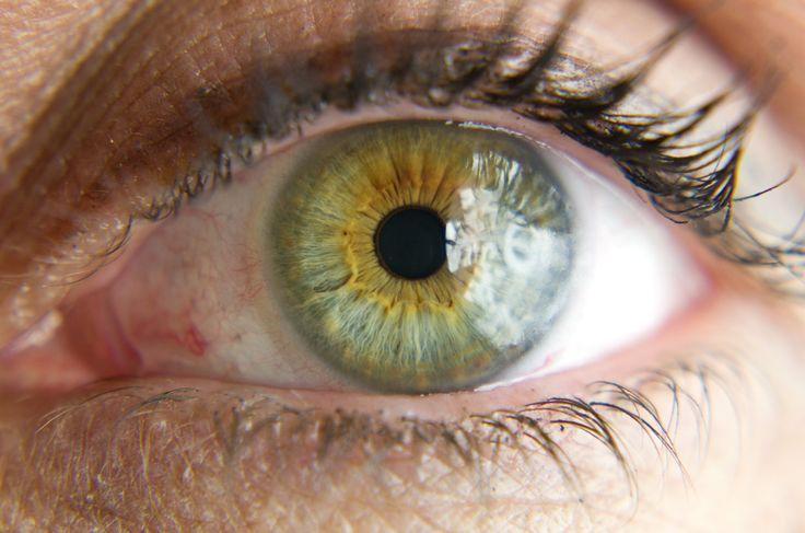 eye  with heteroch...