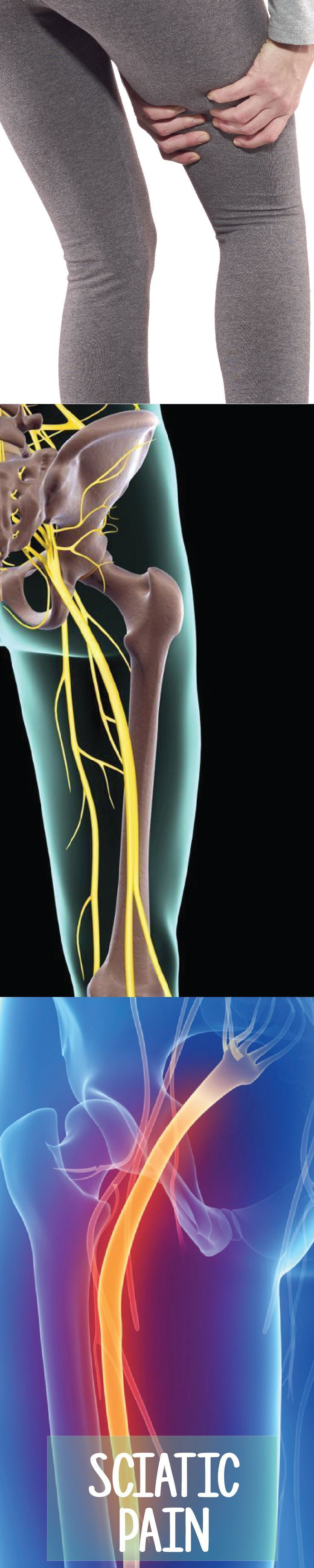 How to Manage Sciatica Nerve Pain and Reduce Leg Pain