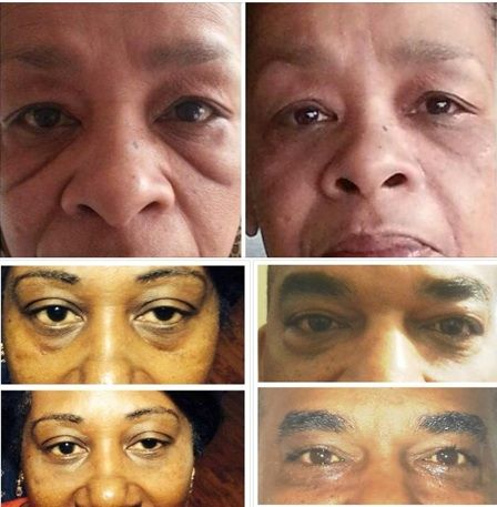 #instantlyageless #before #after #pic #totally #amazing #love #happy #right #now #results