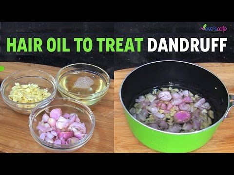 Miracle Hair Oil to Treat Dandruff | Natural Dandruff Cure | Easy Life HacksEasy Life Hacks