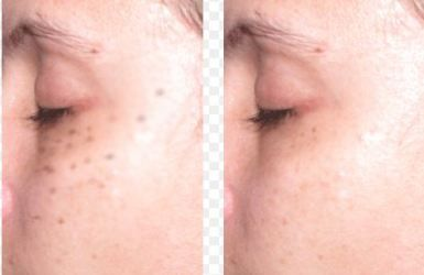 Laser Freckle Removal Before and After