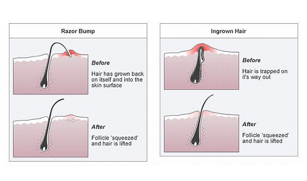 Barber Shave Diagram 4 Wire Thermostat Here's Why You Get Ingrown Hairs! | Shaving Tips & Tricks Pinterest Hair, Wet ...