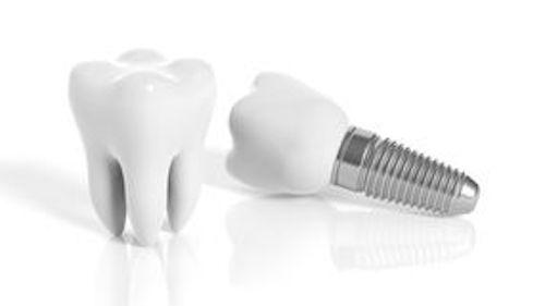 Implantat sparar friska tänder inte tandluckor.