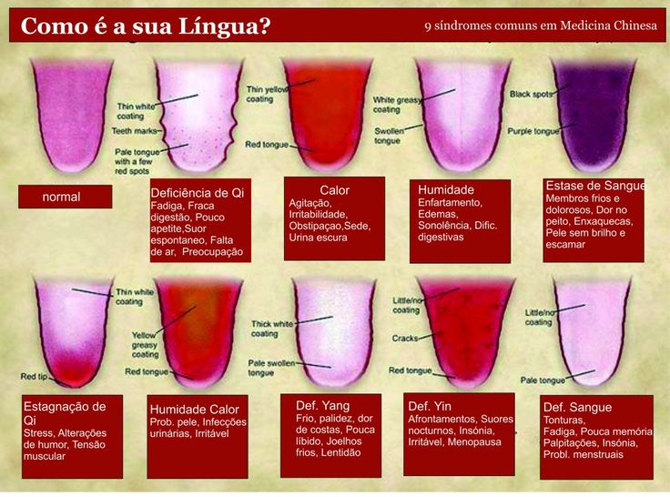 Diagnóstico pela Lingua na Medicina Chinesa  | Tongue Diagnosis in Chinese Medicine