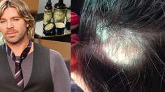 13 Terrifying Hair Loss Stories From Wen Hair Care Users - Talkohttp://www.thetalko.com/13-terrifying-hair-loss-stories-from-wen-hair-care-users/?view=all