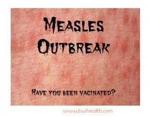 Wow! The measles outbreak expands to 51 cases in California!