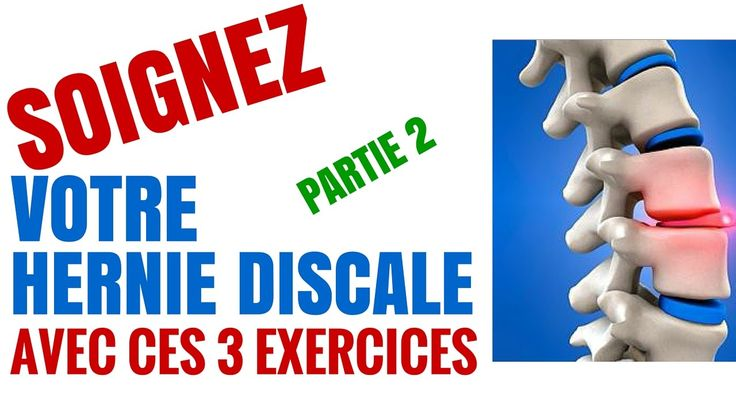 2 exercices Pour Soigner Une Hernie Discale : Partie 2