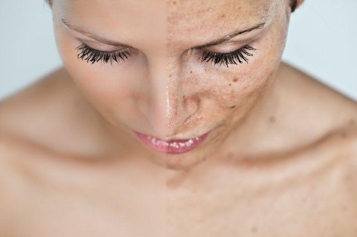 """Hiperpigmentación (Tratamientos Para Manchas) - Busca acelerar la renovación celular cutánea a fin de ir """"eliminando"""" la piel manchada."""