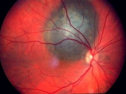 Choroidal Melanoma - Survival Rate, Treatment, Prognosis, Symptoms. It is malignant disorder, which arises from the melanin cells present in the eye.