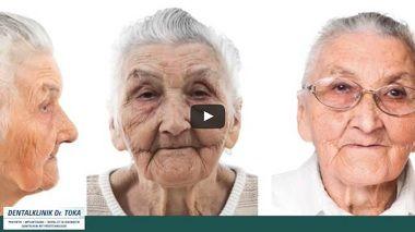 Immer mehr zahnlose Patienten kommen zu uns mit dem Wunsch keine herausnehmbare Prothese tragen zu müssen. Aus diesem Grund haben wir die sogenannte PEEK-Prothese entwickelt. PEEK steht für Polietheretherketone und ist ein spezielle Kunsttoff der die Basis des dieses besondere Zahn-Prothese bildet. Das Material PEEK wird seit bereits 10 Jahren in der Gelenk-Implantologie verwendet. Es  read more