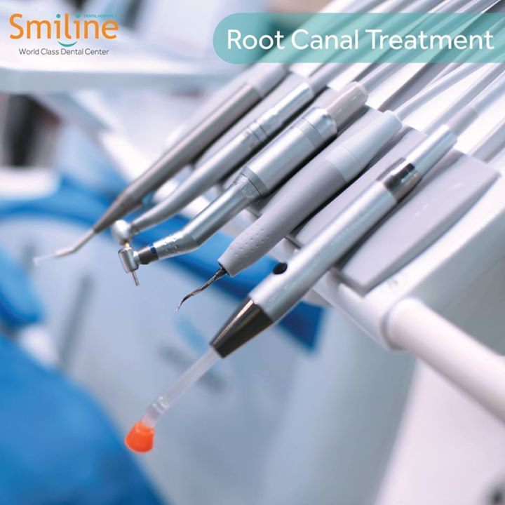 Best Root Canal Treatment can be done in Smiline Multispeciality Dental Hospital in Hi-Tech City, Hyderabad. And probably the best in taking personal care of gum diseases.