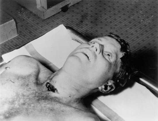 John F. Kennedy autopsy photo (#1) - The Weird Picture Archive