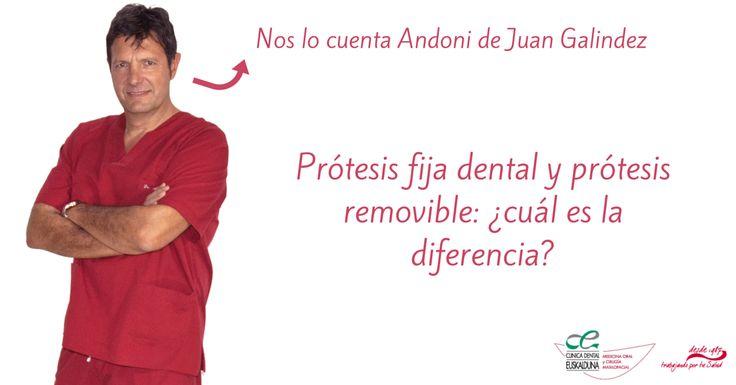 Prótesis fija dental y prótesis removible: ¿cuál es la diferencia?