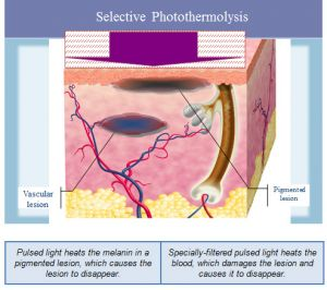 Photorejuvenation is a therapeutic method utilized for the treatment of various skin conditions (acne, rosacea, scars, stretch marks, etc.) ...