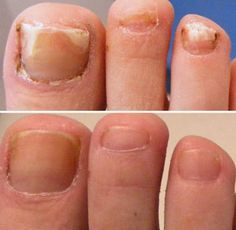 How to cure fungal toenails. Onychomycosis is a fungal infection which may appear in toenails, find the secret to cure 100%