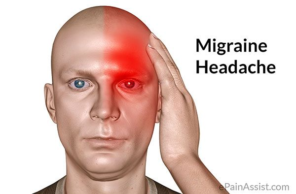 đau nửa đầu, migraine, http://akchongungthu.com/dau-nua-dau-thuoc-nao-tri-tot/