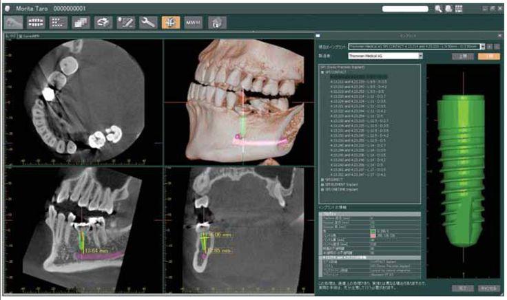 Trajno protetiko na implantatih vstavljamo običajno tri mesece po implantaciji, ko se implantat (vsadek) oseointegrira s kostjo, tam, kjer je pa nujno potrebno, lahko takoj vstavimo estetsko lepe začasne prevleke ali z drugimi besedami: ZOBE LAHKO DOBITE TUDI V ENEM DNEVU. Če v čeljustih sploh nimate zob, jih lahko vstavimo v obliki fiksnega mostička s samo 4 implantati, vstavljenimi s sistemom ALL-ON-FOUR. http://www.zobozdravnik-hrvaska-knego.si/implantati-zobnivsadki.html