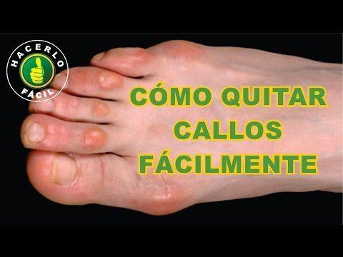acido urico sintomas en las manos horario de dieta de acido urico y colesterol dieta contra acido urico