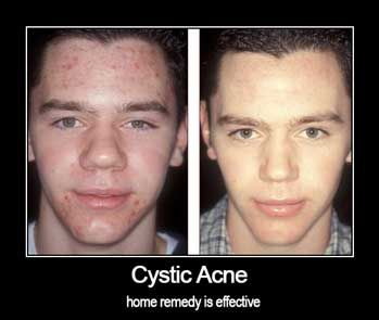 cystic-acne-home-remedy