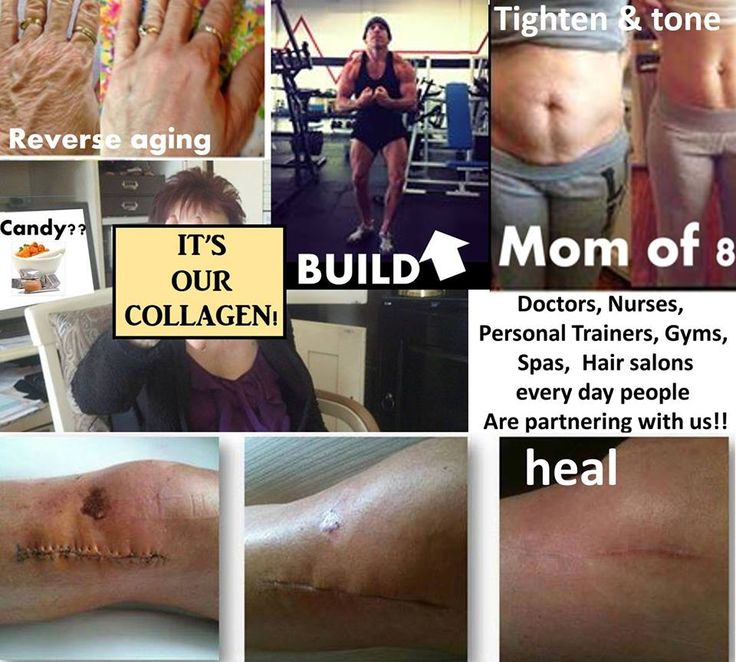 It's our Collagen Protein!