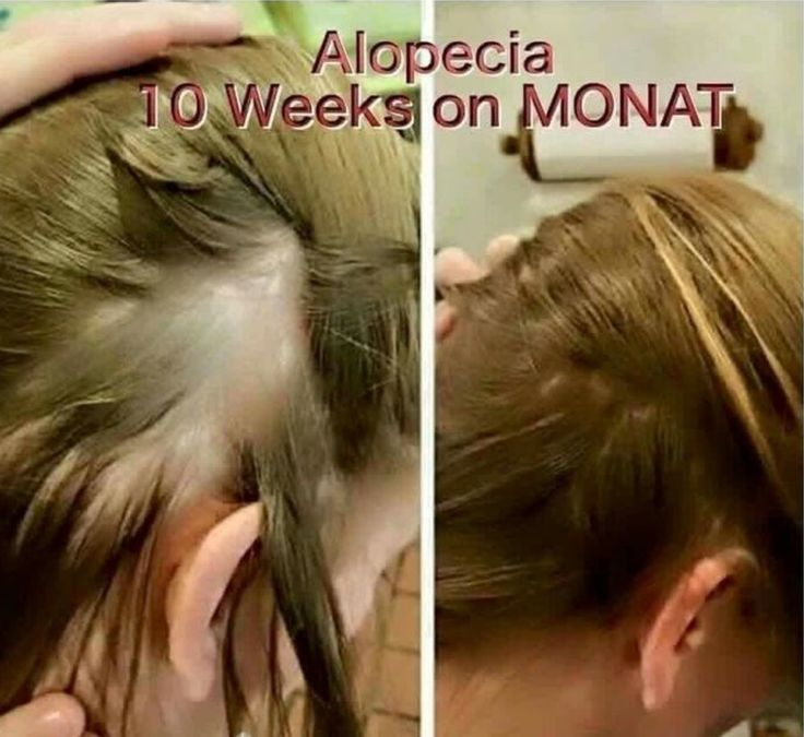 Hair Loss Treatment that works  SAFE, chemical free hair products for the whole family !! Enroll as a VIP receive 15% off. 30 day money back guarantee-even if you use all of the product! Order Monat here: www.mylittlehairsecret.mymonat.com  ID# 506120