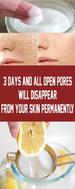 Get rid of pores in 3 days